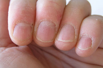 Nails Reflect Well Being Of The Patient We Deal With All Sorts Nail Diseases Infections Ingrown Toe Pitting Dystrophy And Deformity